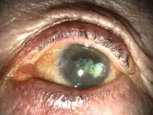 Herpes zoster ophthalmicus (HZO) | Maidstone Eye Practice