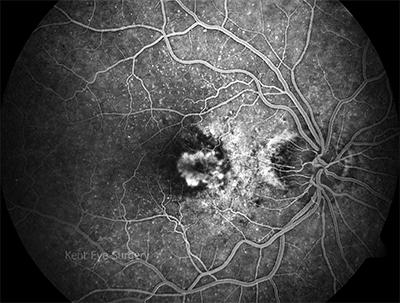 Resultado de imagen de AMD angiography